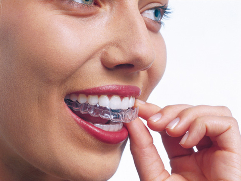 studio smiles alpignano invisalign