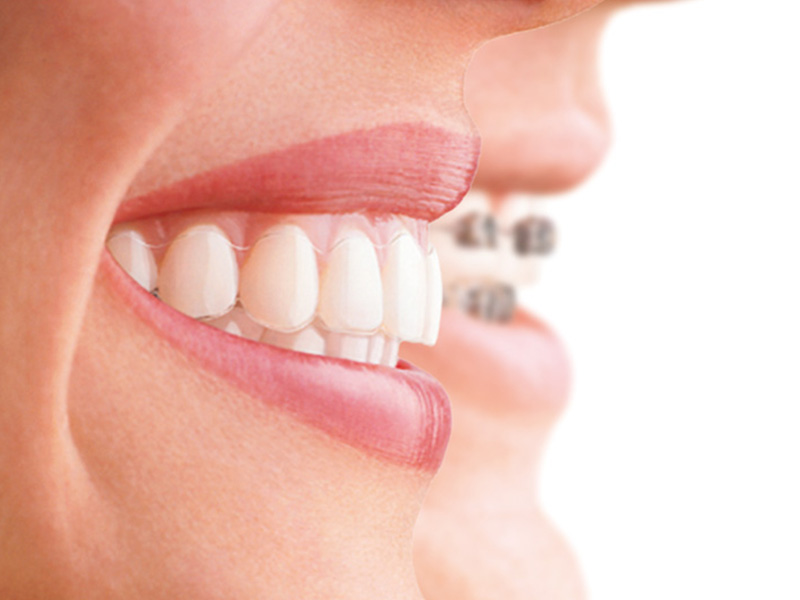 studio smiles alpignano ortodonzia